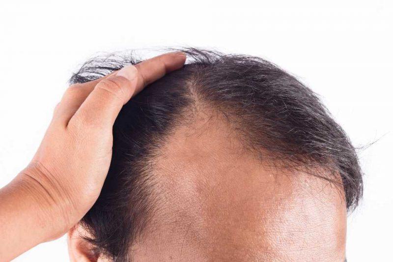 man becoming bald